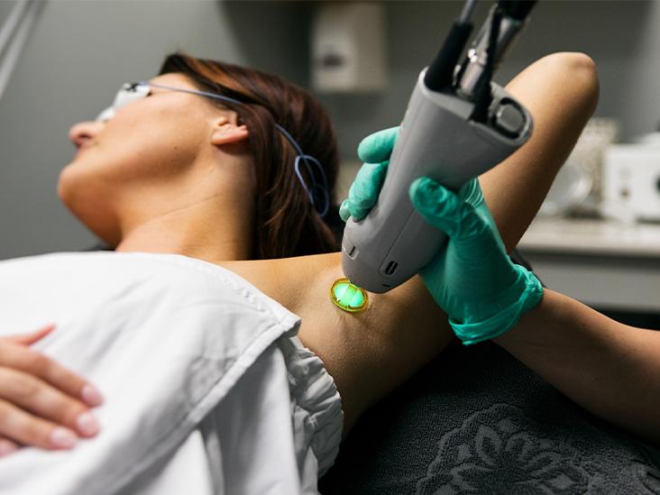 زنی در حال لیزر موهای زائد زیر بغل - دستگاه لیزر الکساندرایت کندلا ۲۰۱۹