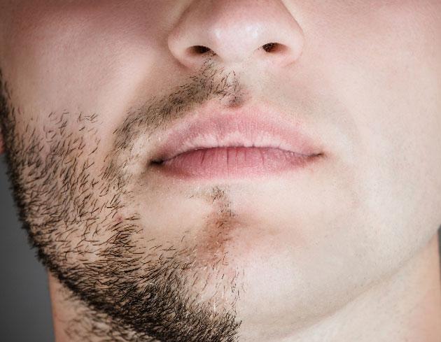 لیزر صورت مردان - قبل از لیزر موهای زائد صورت چه باید کرد
