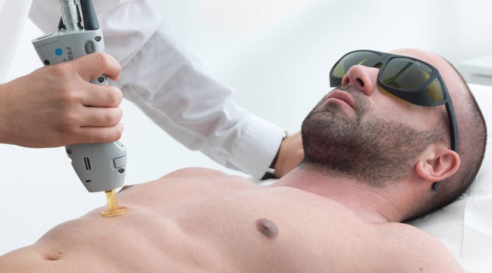 مردی با عینک آفتابی روی تخت دراز کشیده و اپراتور در حال لیزر موهای زاید مرد در ناحیه سینه اوست