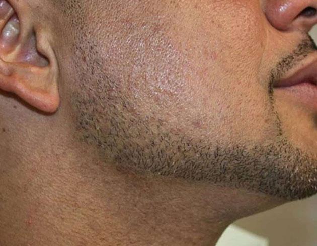 ليزر خط ریش مردان
